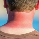 آفتاب سوختگی خطرناکتر از چیزی که فکر می کنید
